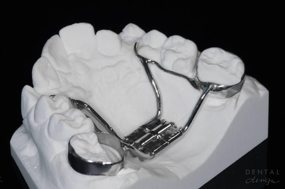Ortodontilised raviaparaadid ning kaped